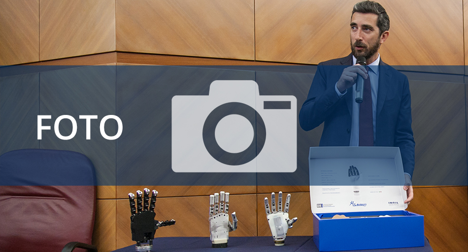 Conferenza stampa - presentazione della mano protesica poliarticolata Hannes