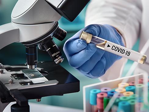 Provetta laboratorio covid-19