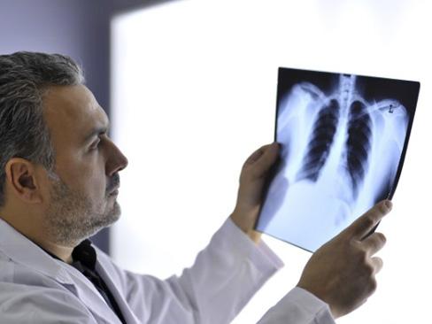 Dall'Inail nuovi indirizzi operativi per la diagnosi delle malattie respiratorie professionali