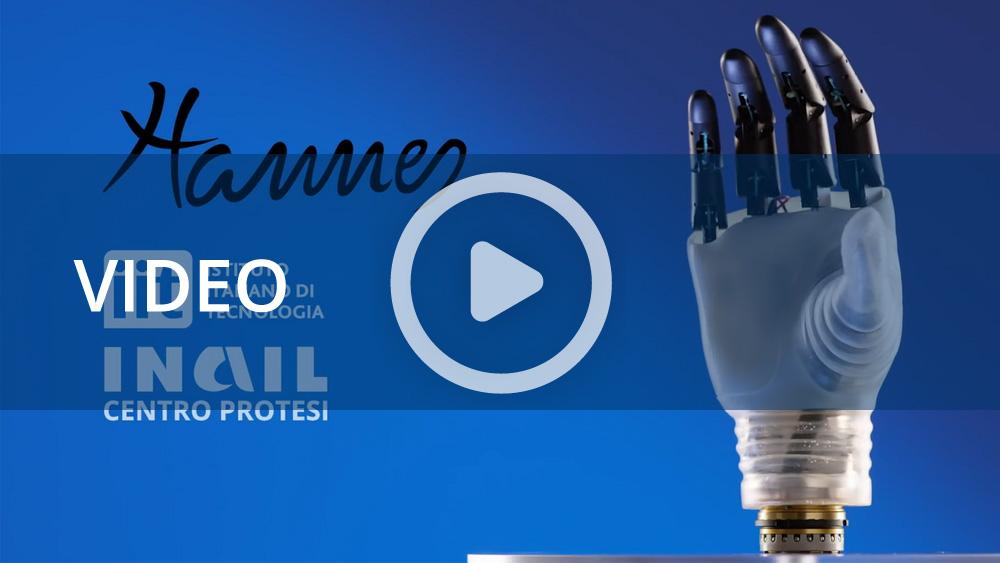Inail, ieri e oggi: l'innovazione tecnologica per il recupero dell'abilità motoria