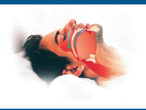 Sindrome delle apnee ostruttive del sonno